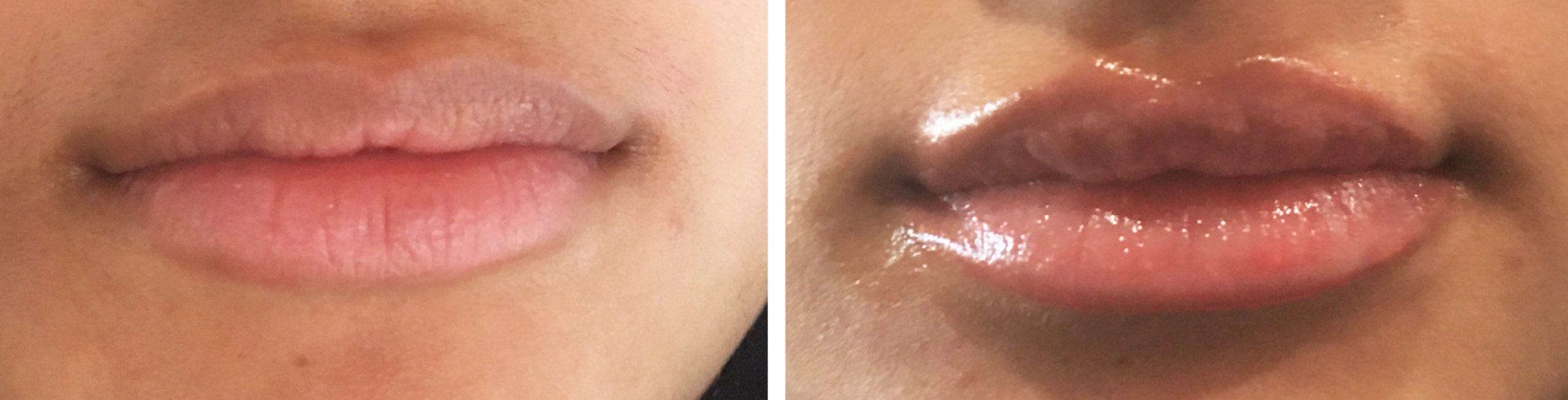 Permanent Lip Color - ABG Wellness - Chandler AZ