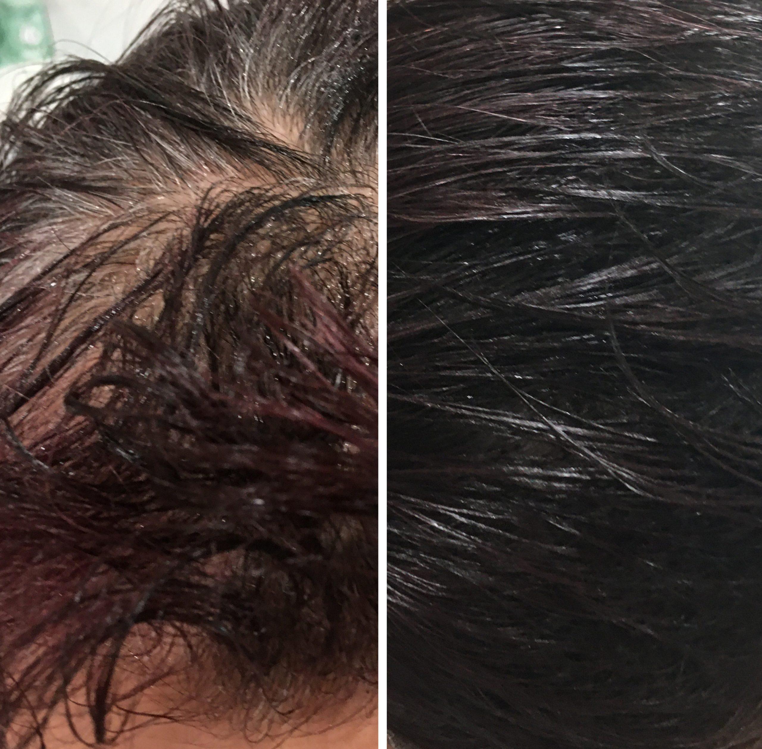 Scalp Micropigmentation - ABG Wellness - Chandler AZ